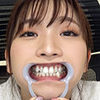 [Teeth fetish] I observed Suzuki Mayu's teeth!