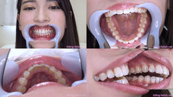 [Tooth fetish] I observed Yuri Sasahara's teeth!
