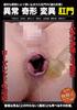 Abnormal malformation mutation anus