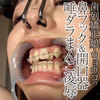 Orthodontics in Ryoko nose hook & tailored openings with slaves, pussy love humiliation