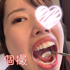 [Individual] shooting Saori was filled with plaque behind the teeth of the active soap lady