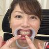[Teeth fetishism] I observed Chita Shoda's teeth!